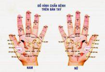 Điều trị đau đầu và đau nửa đầu bằng cách bấm nguyệt bàn tay